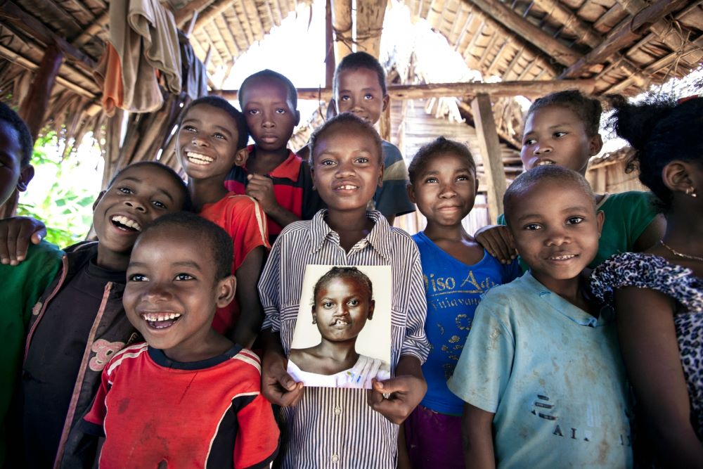 Smiling girl surrounded by friends holding a photo of herself before cleft surgery